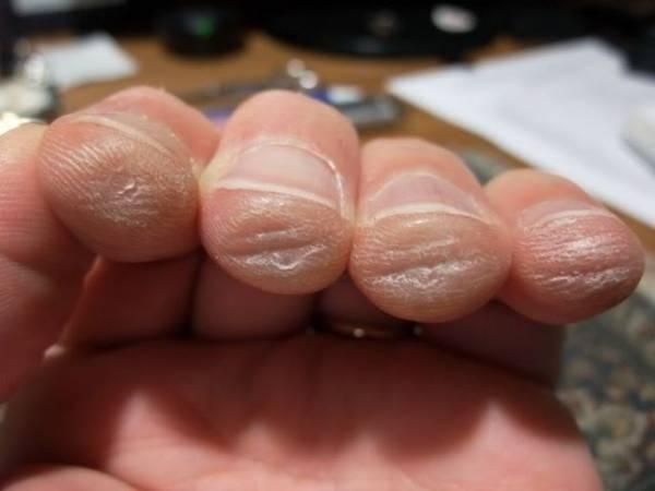 đau đầu ngón tay khi mới chơi guitar